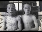 Can you guess which one was vaccinated?